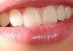 Dentista en Edmonton - Odontologo en Calgary